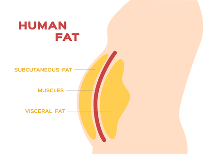 human belly and abdomen fat layer vector / subcutaneous and visceral fat Stock Illustratie