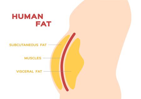 menschlicher Bauch- und Bauchfettschichtvektor / subkutanes und viszerales Fett Vektorgrafik