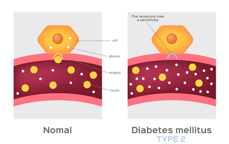 Insulin type / normal physiology , diabetes / unlocks the cell's glucose channel animation graphic 版權商用圖片 - 115467916