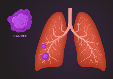 cancer cell on lung vector