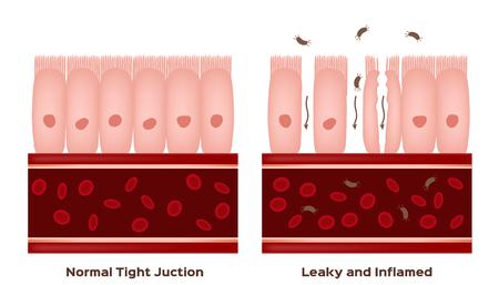 Celiachia Danni al rivestimento dell'intestino tenue. villi buoni e danneggiati. progressione di permeabilità intestinale