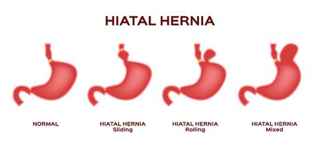 Hiatal hernia / stomach vector