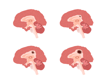 brain cancer vector stages  tumor