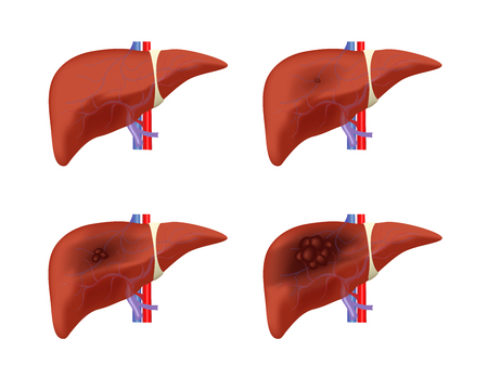 liver cancer stages vector / tumor