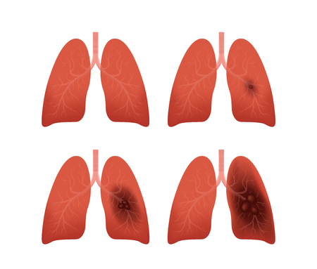 lung cancer stages vector  tumor Illustration