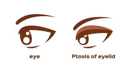ptosis of eyelid . eye sickness anatomy vector Banque d'images - 119973061