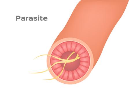 Parasit im Magen- und Darmvektor