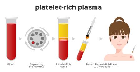 Etapas del procedimiento de plasma rico en plaquetas / prp / vector de centrífuga Ilustración de vector