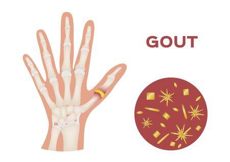 gout in human hand vector / human, anatomy