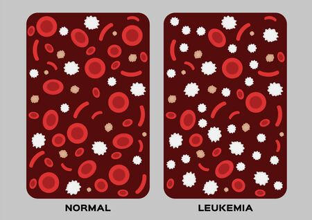 leukaemia  human blood concept  white and red blood cell vector