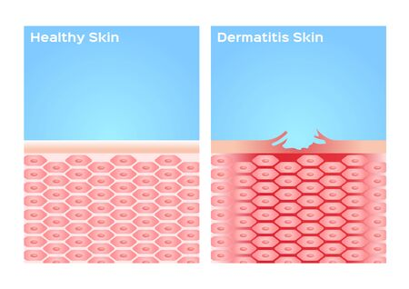 eczema skin  skin with dermatitis  disease vector