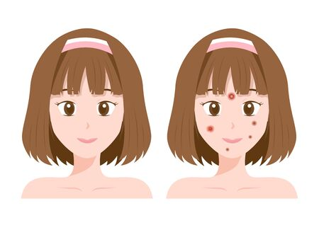 Acne and Pimples, cartoon anime women face, graphic vector