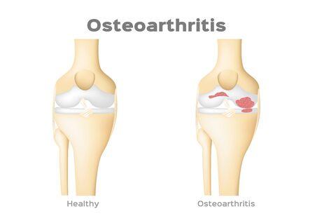 Vector de osteoartritis médica en hueso, concepto de enfermedad, inflamación de rodilla y articulación