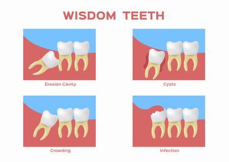 wisdom teeth vector Ilustracja