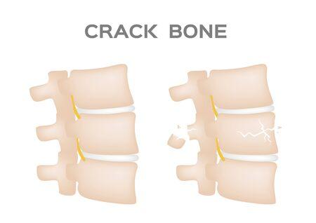 crack bone spine  broken and damaged disc vector