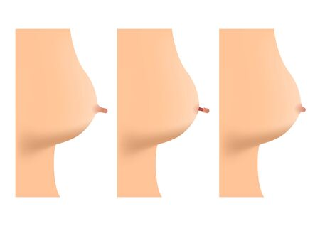 reduction vector / infographic / plastic surgery