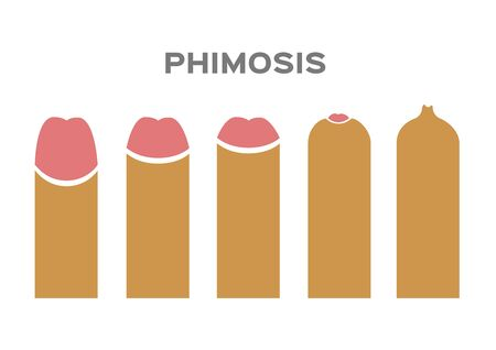 phimosis type vector on white background 矢量图像