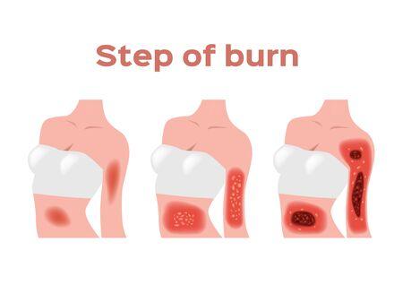 paso de quemado. Piel con quemaduras normales a graves. vector e icono / cuerpo pecho y brazo Ilustración de vector