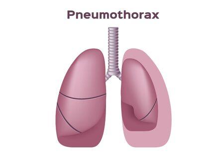 symptoms of pneumothorax lung vector Illustration
