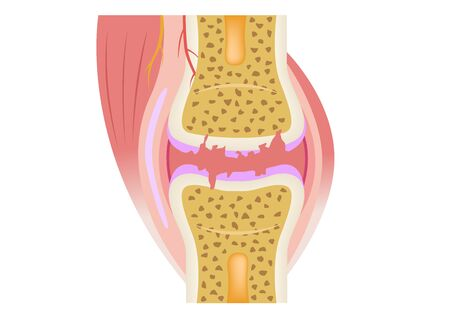 damaged joint  crack bone and osteoarthritis vector