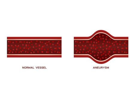 aneurysm blood vessel  anatomy vector