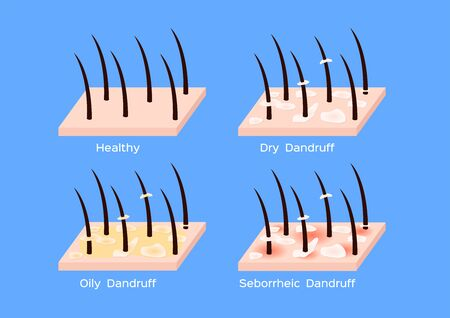 Dandruff on hair vector, closeup on skin vector, seborrhea