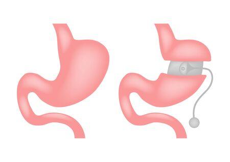 laparoscopic gastrectomy Gastric Sleeve  weight loss Banding surgery vector Illusztráció