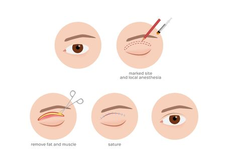 double eyelid surgery infographic step vector / cosmetic surgery on white background