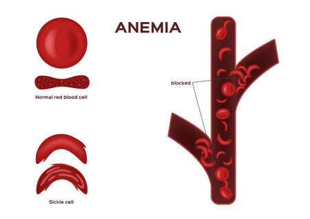 Normal red blood cell and sickle cell vector / anemia on white