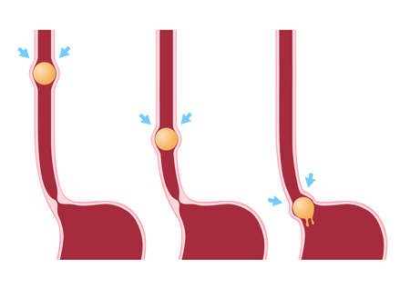 Digestion and Peristalsis vector / intestine on white