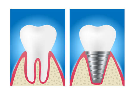 Dental implant structure medical / tooth and teeth concept vector on white