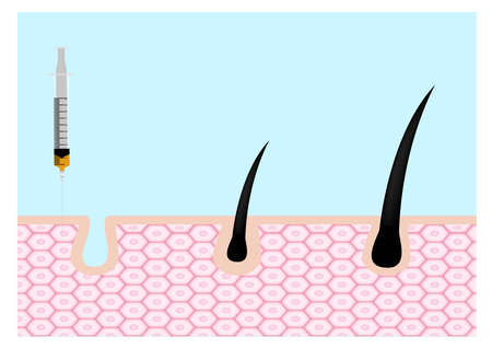 Platelet-Rich plasma . prp . hair growth vector on white background