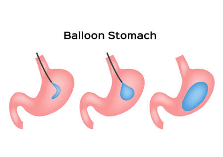balloon stomach vector . human anatomy on white