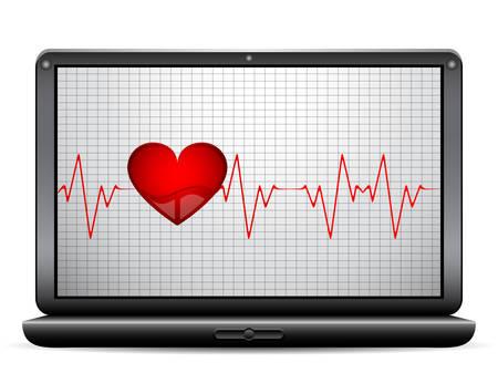 taking pulse: Heart beat on the display. Vector illustration.