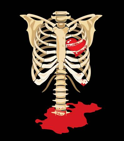 rib cage: Vector  Red heart inside of skeleton and blood splatters