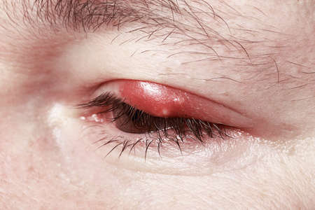 Sore Red Eye. Chalazion and Blepharitis. Inflammation photo