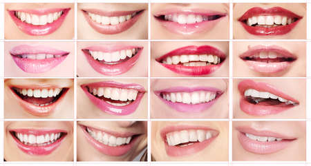 Set of Womens Lips Toothy Smiles