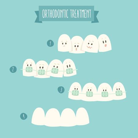 dientes caricatura: diente tratamiento de ortodoncia tirantes ilustración vectorial diseño plano