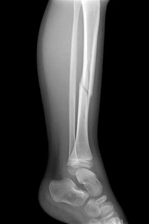 radiogram: Broken leg x-rays image presenting plate - screw fixation tibia and fibula bone Stock Photo