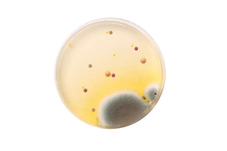 Microbiological plate with bacteria and fungi over white background photo