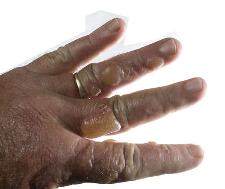 wysypka: Cztery palce z blistry po ich encounter poison oak