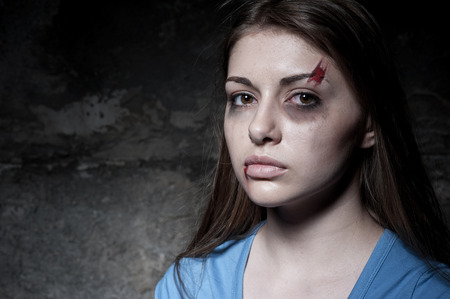 beaten up: Beaten up woman  Young beaten up woman looking at camera while standing against dark wall
