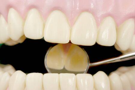 Teeth Stock Photo