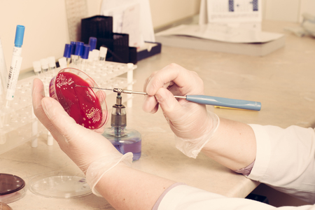 hormones: Research on blood samples for diseases and hormones Stock Photo