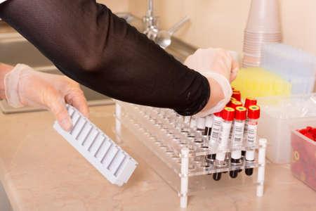 hormonas: La investigación sobre las muestras de sangre para las enfermedades y las hormonas