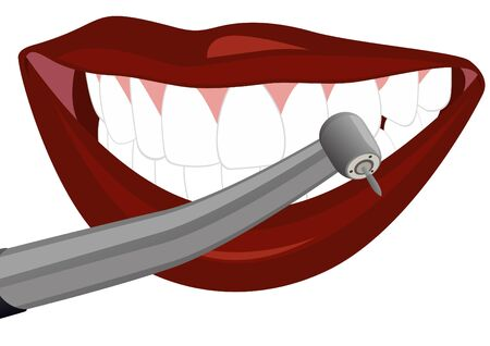 Part of the human face and dental device for dental treatment. The illustration on a white background. Vector