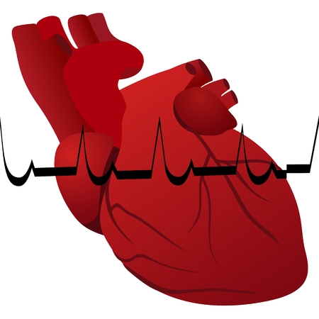 infarction: The human heart and cardiogram myocardial infarction. The illustration on a white background.