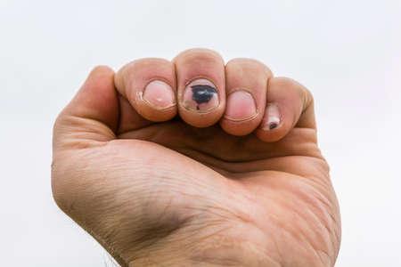 가운데 손가락과 남자 손의 작은 손가락에 혈종 성 혈종 스톡 콘텐츠