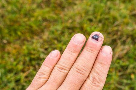 남자의 손의 가운데 손가락에 혈종 성 혈종 스톡 콘텐츠