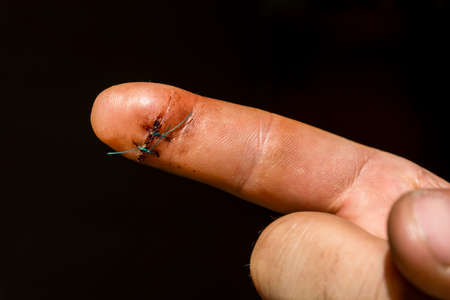 suture: Surgical suture on the index finger of his right hand.